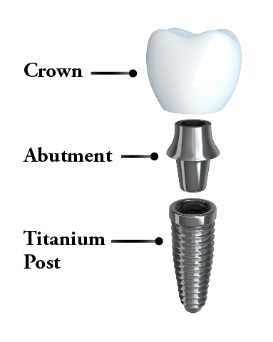 The anatomy of a dental implant: Titanium post, abutment, and crown