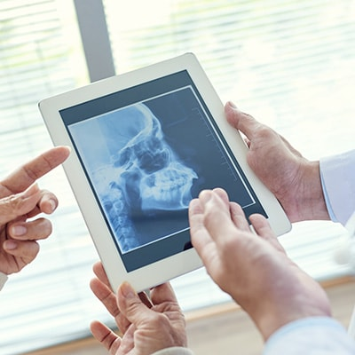 Dentists looking at the jawbone and skull on a x-ray for a possible Bone Grafting and Sinus Augmentation