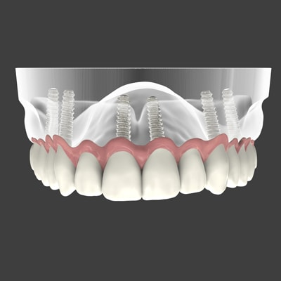 Graphic of a full mouth implant